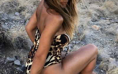 No More Cellulite – Κυτταρίτιδα:  Και όμως υπάρχει λύση…